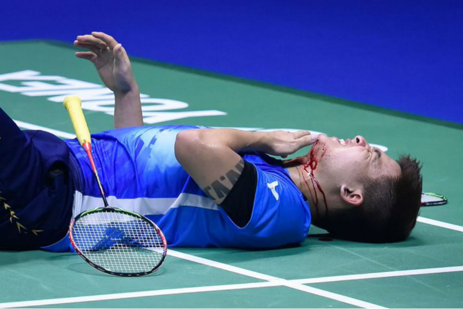 Sudirman Cup: Malaysia badminton player accidentally smashes partner's chin